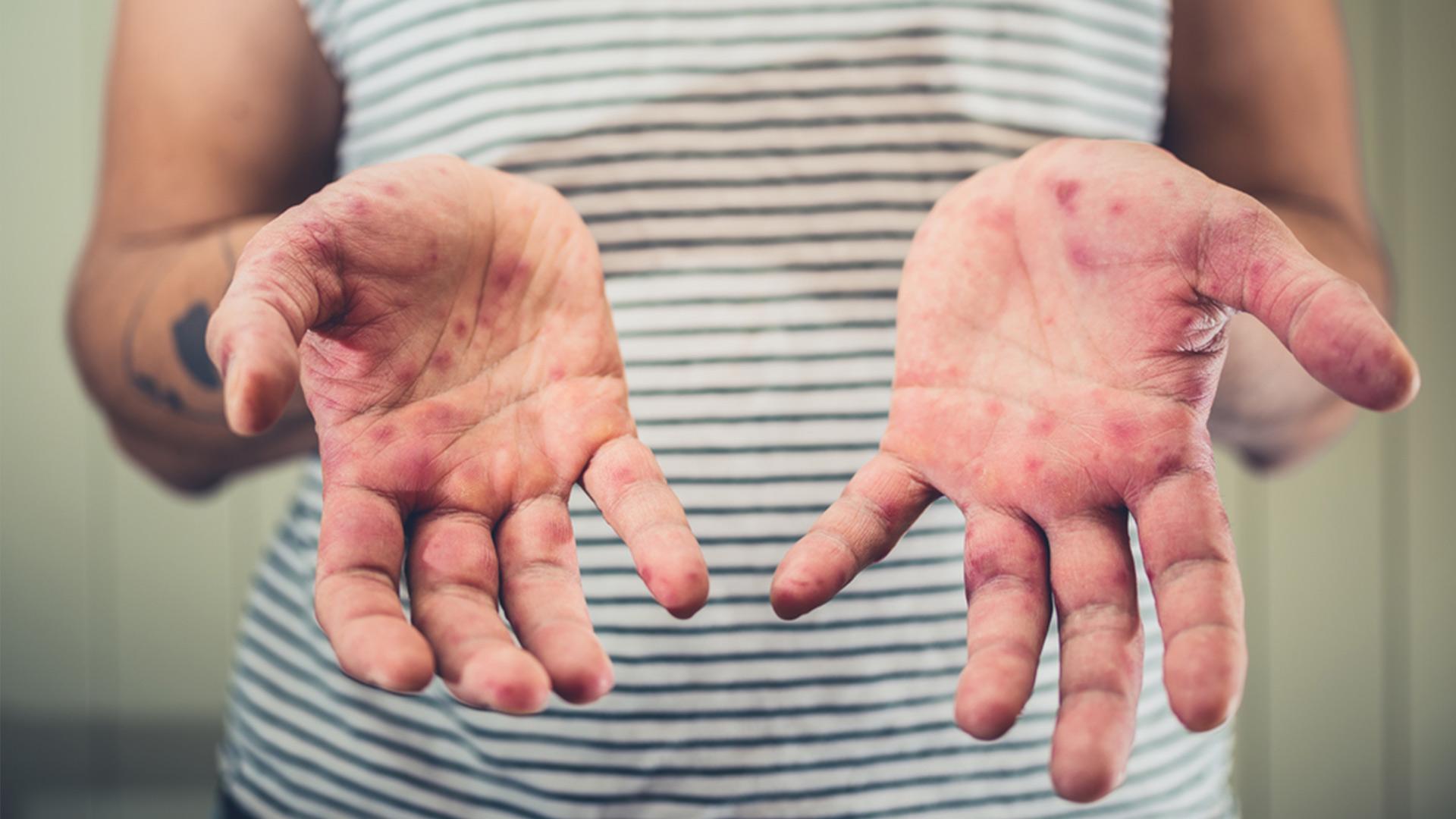Sarampo: saiba mais sobre a doença!